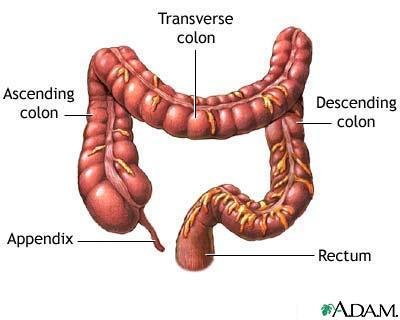 What are the consequences of rapturing the large intestine?