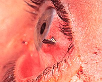 How can I tell whether my eye injury is severe enough to see a doctor?