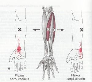 I have carpal tunnel, what products should I use for everyday life?