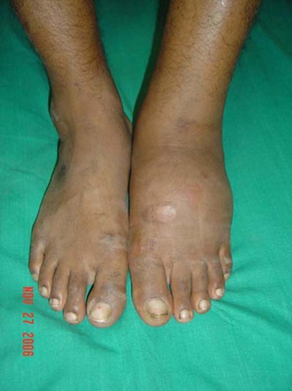 What do I do for someone who has ganglion cysts and is suffering from swollen feet?