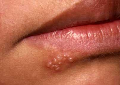 Are there certain creams that prevent an outbreak of herpes?