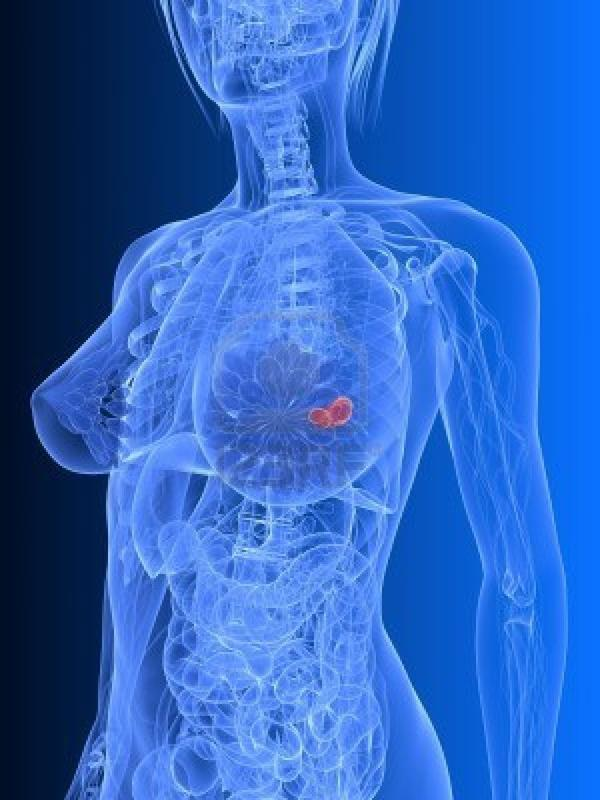 What are the effects of breast cancer on the body?