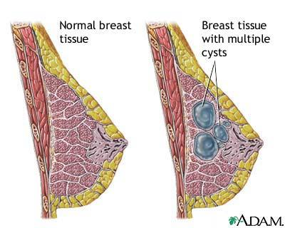 What can cause swollen, tender breasts?