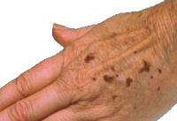 How do get rid of spots on hands?