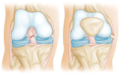 What does a meniscus or ligament tear feel like?