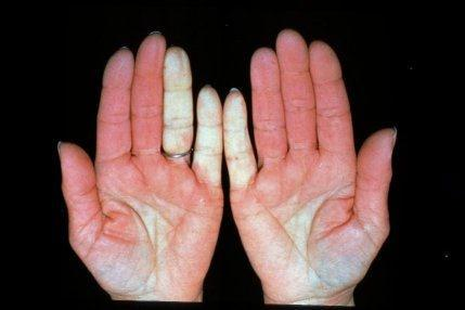 Should you see a doctor if you have a raynaud's vasospastic attack?