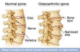 What is the best treatment for bone spurs in c/t spine?