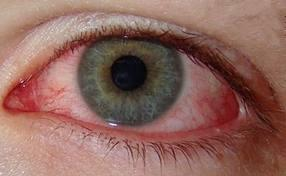 What are signs of an eye infection?