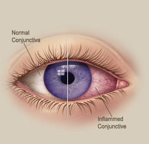 Best home remedies to cure pink eye?