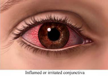 How can I tell if I have a pinkeye infection?