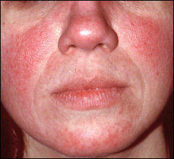 What's the treatment for rosacea?