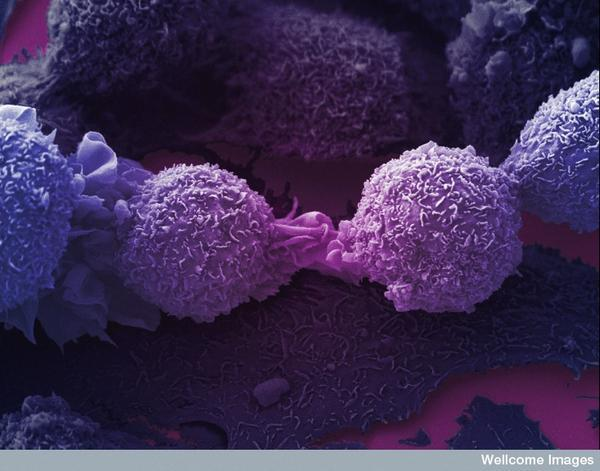 How long would someone have to live if their cancer is metastasis?
