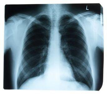 Can a chest X-ray diagnose asthma?
