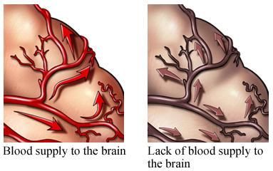 Vascular dementia -- can you explina how this happens?