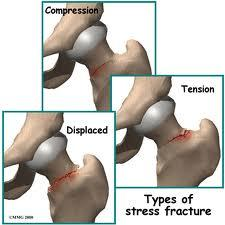 How long would it take for a stress fracture of the hip to heal?