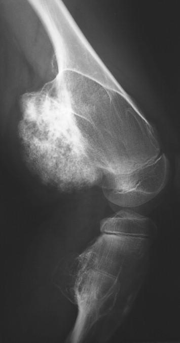 What is a sessile osteochondroma?