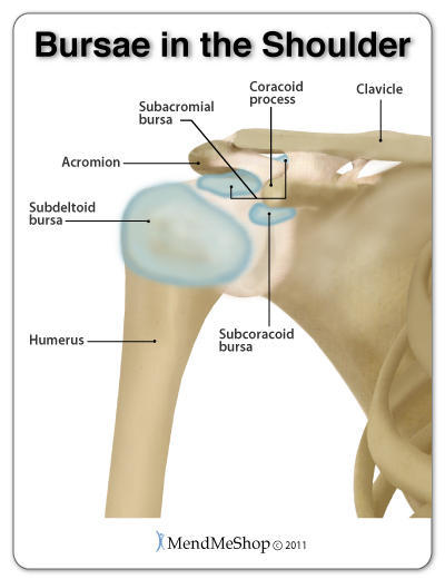 What can be done for rid shoulder bursitis?
