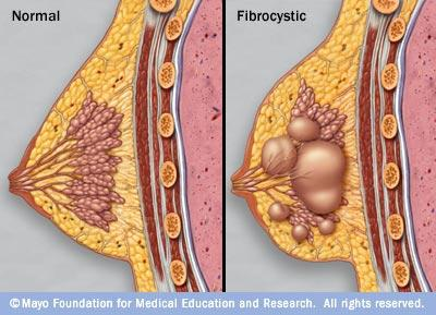 Would fibrocystic breasts have physical changes?