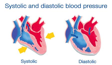 What causes high systolic blood pressure, and low diastolic pressure?