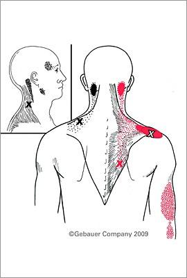 Pain below shoulder blade when breathing
