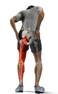 Can sciatica cause heel pain?