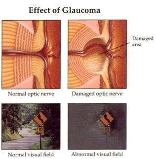 Are there any supplements to help prevent glaucoma?