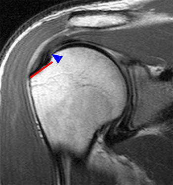 Does anyone know whether a rotator cuff tear could be missed in imaging?