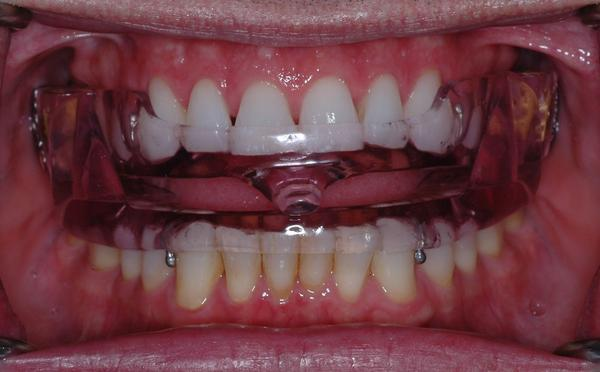 Best Dental Appliance For Sleep Apnea And Doctor