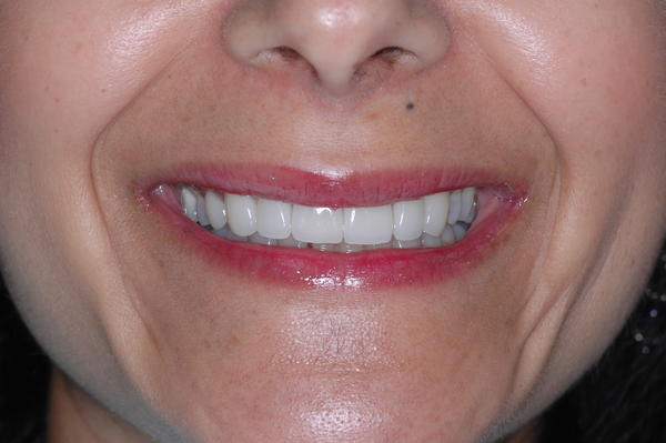How do porcelain veneers and lava veneers differ?