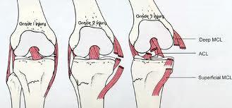 If i tore my MCL  and need possible surgery on it what will it consist of and how much therapy will there be?