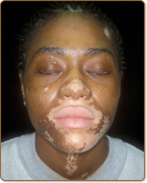 Vitiligo can be corrected on starting stage itself?