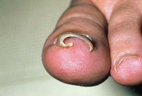 What can I do to care for an ingrown toenail?