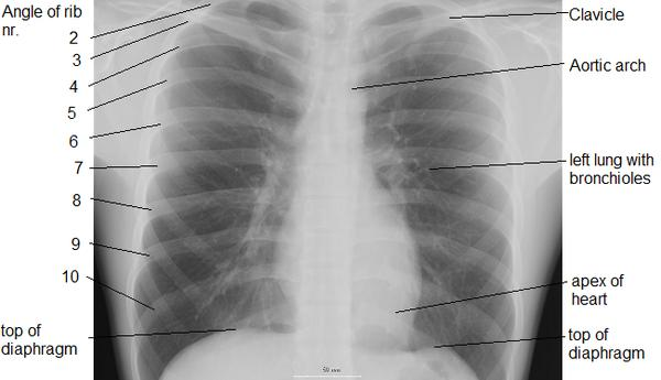 10 yr  bc survivor . Cxr showed a solid nodule in lung, or in chest wall.  What's the difference of lung and chest wall?  Scar tissue  fm mastectomy ?
