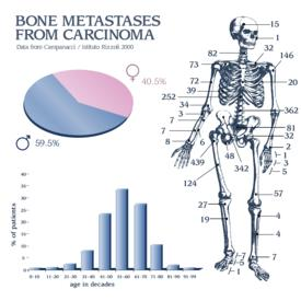 Can a malignant tumor spread to bones via local metastasis?