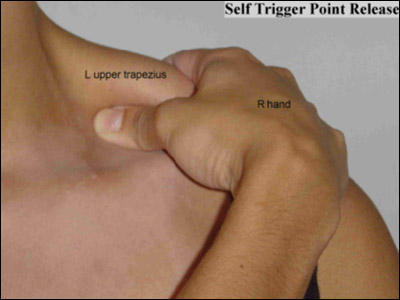 Any value from myofascial trigger point release for musculoskeletal pain?