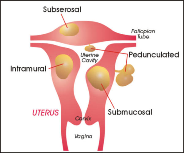 How many types of uterine fibroids are there?