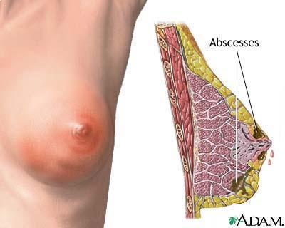 Might have a breast abscess -- what does one look like?