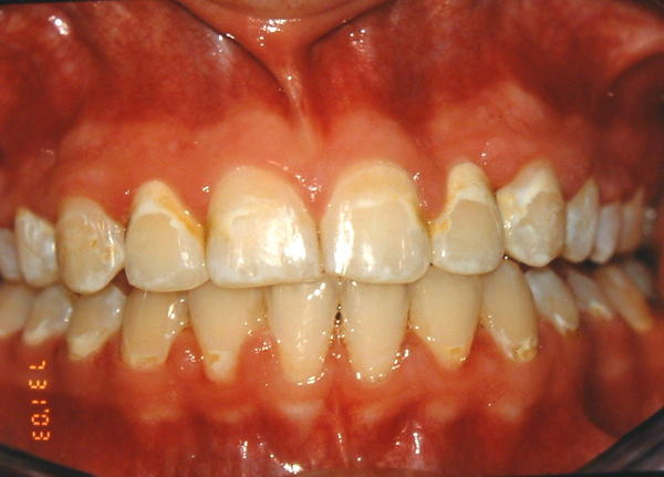 Do yellow braces make your teeth look moldy?