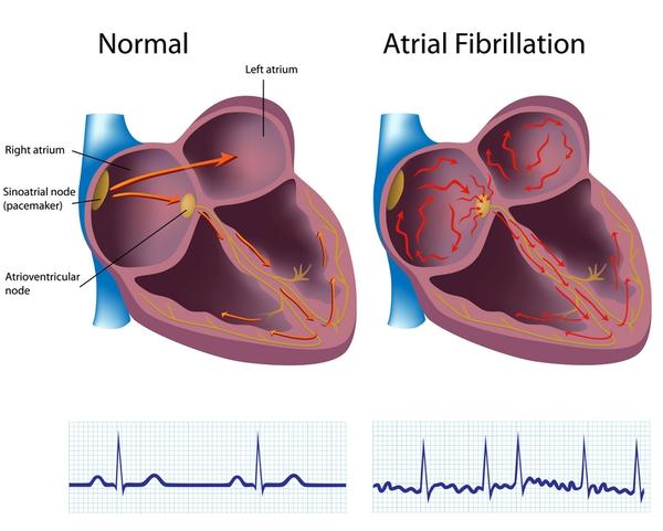 What is a nursing intervention for atrial fibrillation?