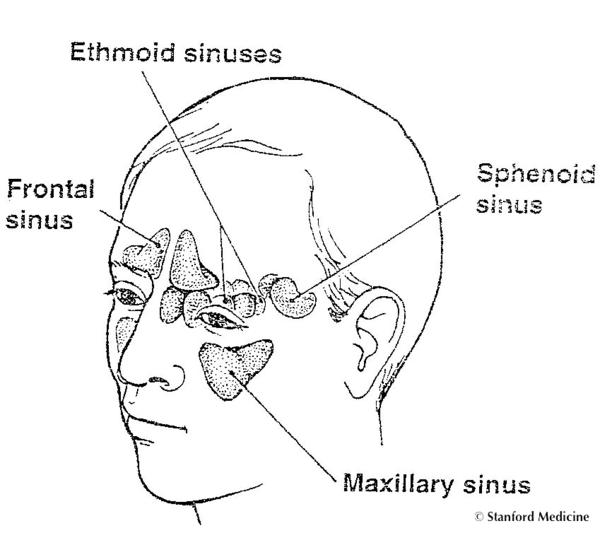 How do I know if I have sinus problem? What are the symptoms?