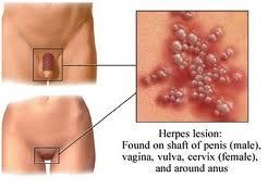 What does vaginal herpys look like?