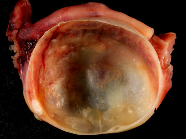 What does a 6.4 x 3.5 CM cystic lesion with internal septation mean in plain english?