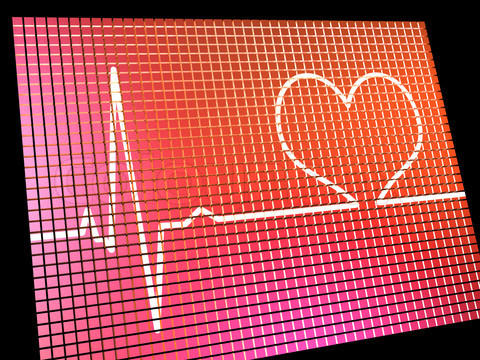 What does it mean if my heart rate goes up real high from 160 170?