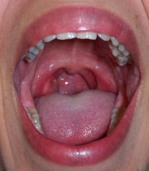 Should I exhale through open mouth?