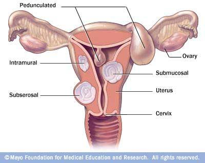 My uterus contains a 6cm fibroid in the posterior myometrium.  Does this mean it is inside the uterus - or in the wall of the uterus?