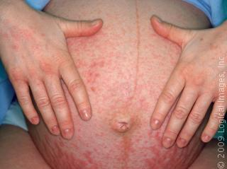 Now I am 30 week pregnant, in all over the body is very itching and rashes, how to control & rashes & struch marks will go, please give  the sollustion?