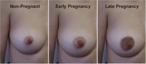 My girlfriends nipples are hurtig her and look swollen is she pregnant?