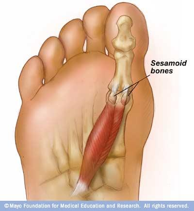 What are the symptoms if your  sesamoid bones are bruised, or broken?