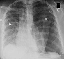 Is pneumothorax common?