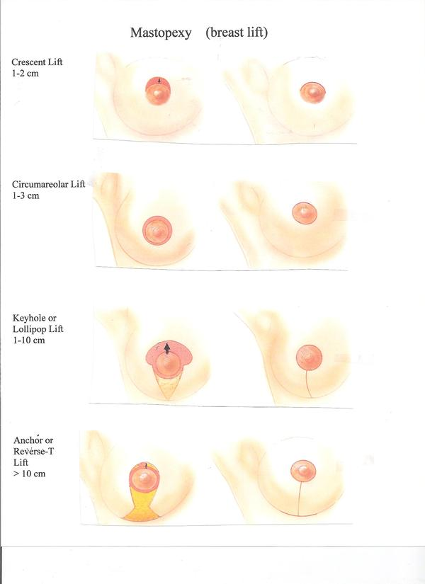 How noticeable are scars after  a breast reduction?